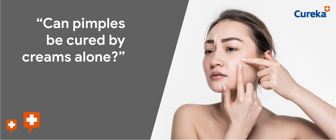 women applying creams to get rid of pimples